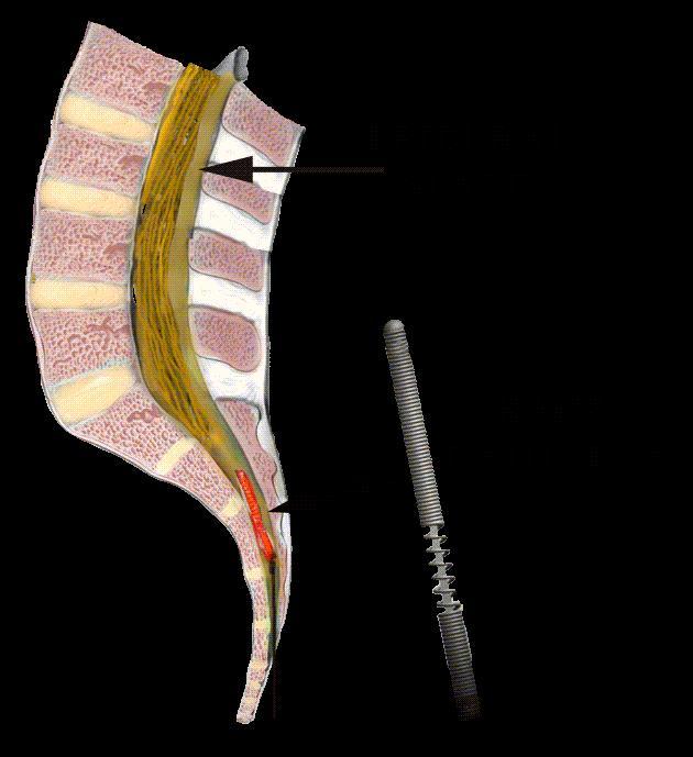 racz epidural steroid injection
