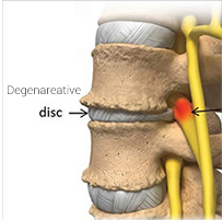 Degenerative spine disease